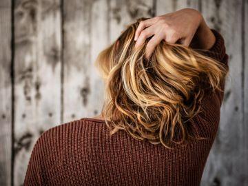 El pelo grasoso no es una enfermedad en sí. / Foto: Unsplash