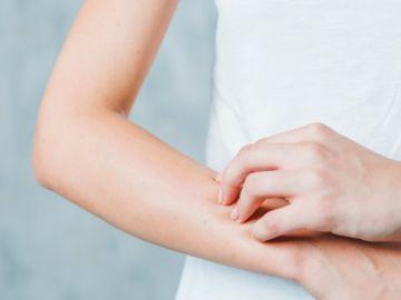 enfermedades en la piel