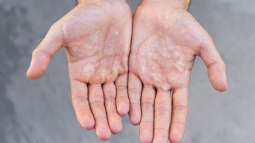 Evita propagar el Covid-19 limpiando tus manos. / Foto: Freepik.