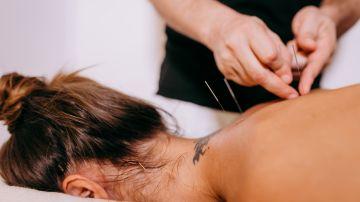 acupuntura, bajar de peso, Estar Mejor